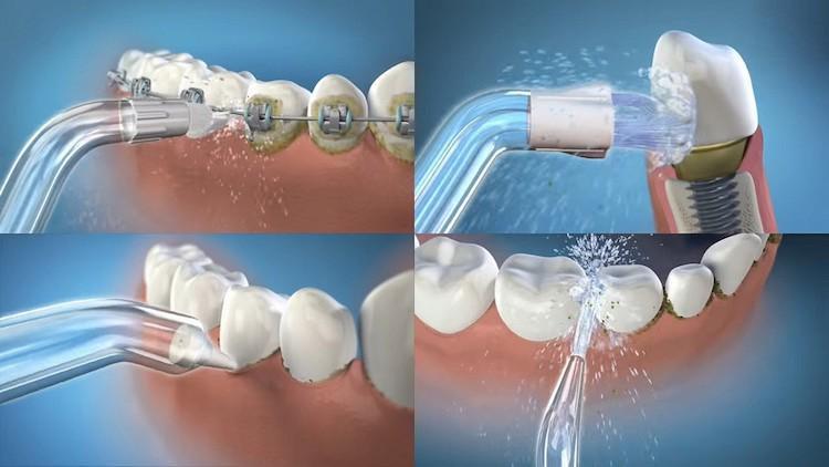Как и какой выбрать ирригатор для зубов
